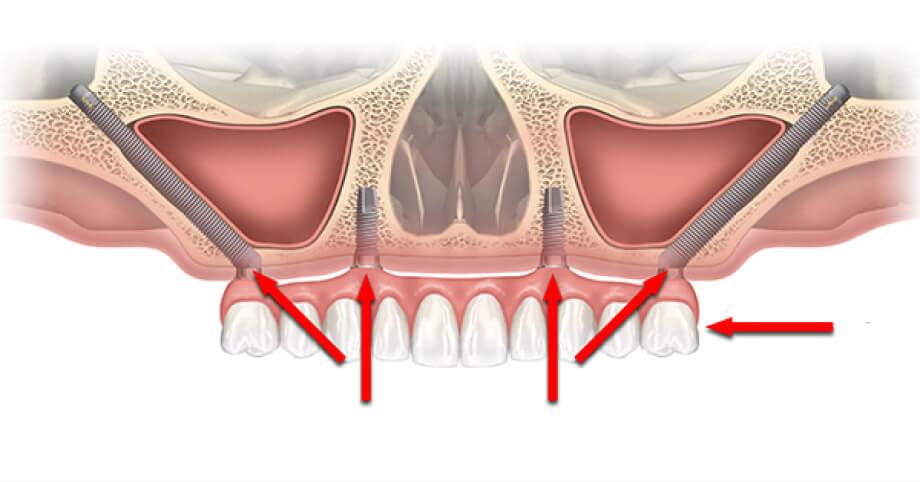 Имплантация зубов без костной пластики mobile