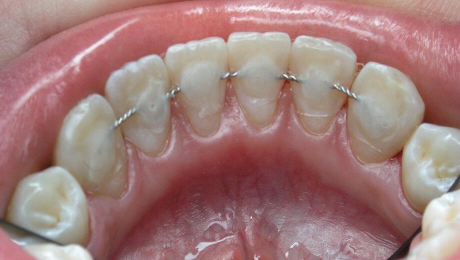 Шинирование зубов mobile