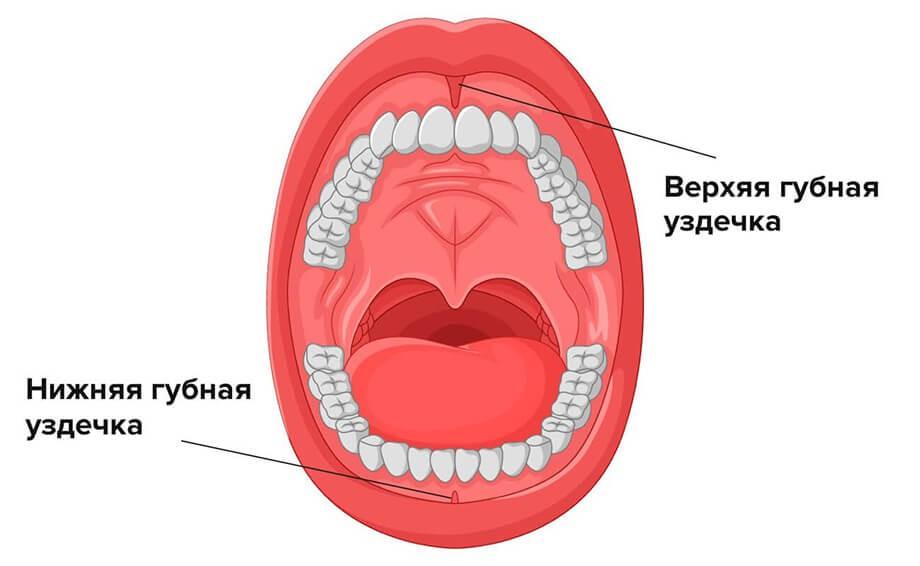 Пластика уздечки верхней или нижней губы