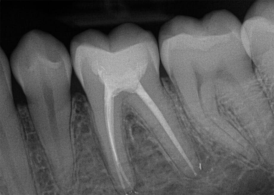 Прицельный снимок зуба mobile