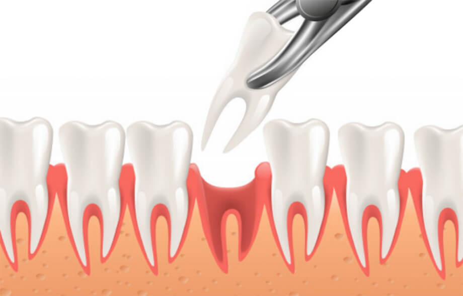 Простое удаление зуба mobile