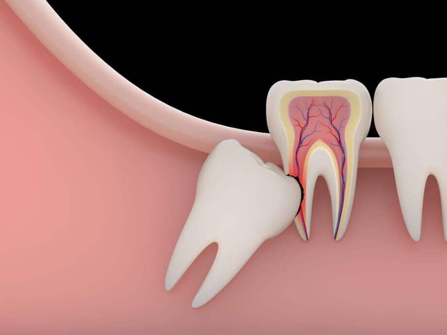 Удаление ретинированного зуба mobile