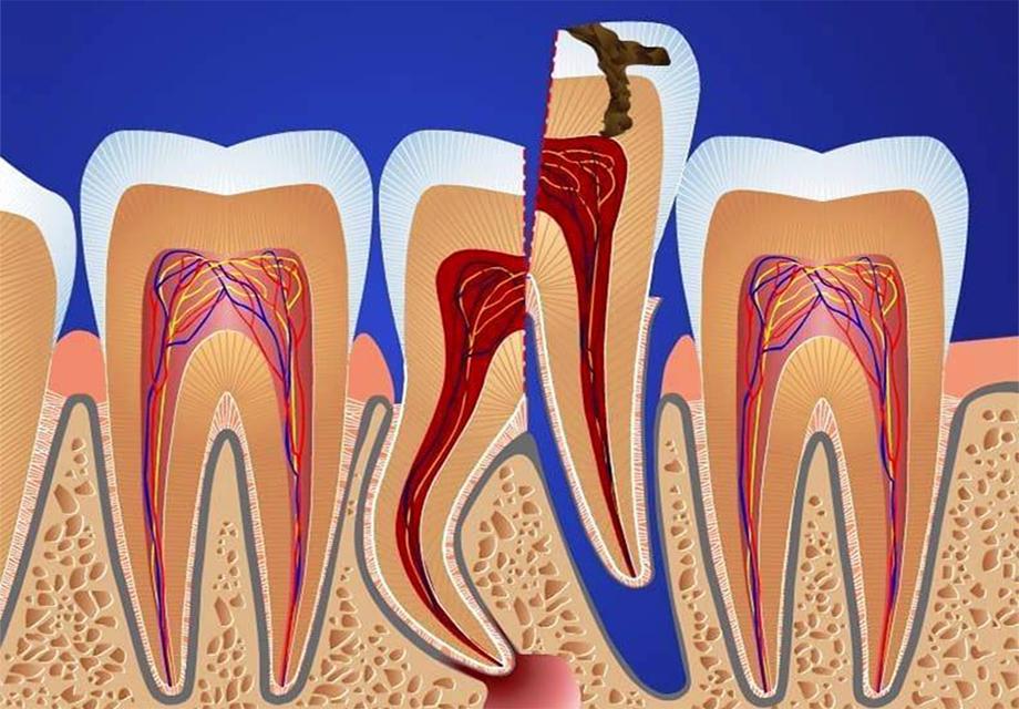 Удаление осколка зуба mobile