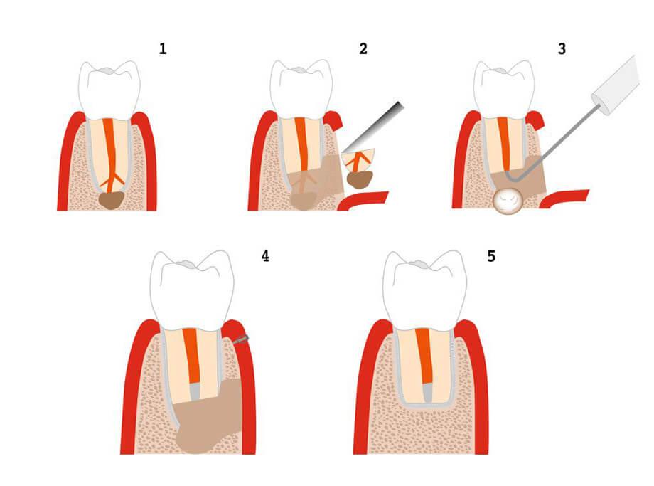 Резекция верхушки корня зуба mobile