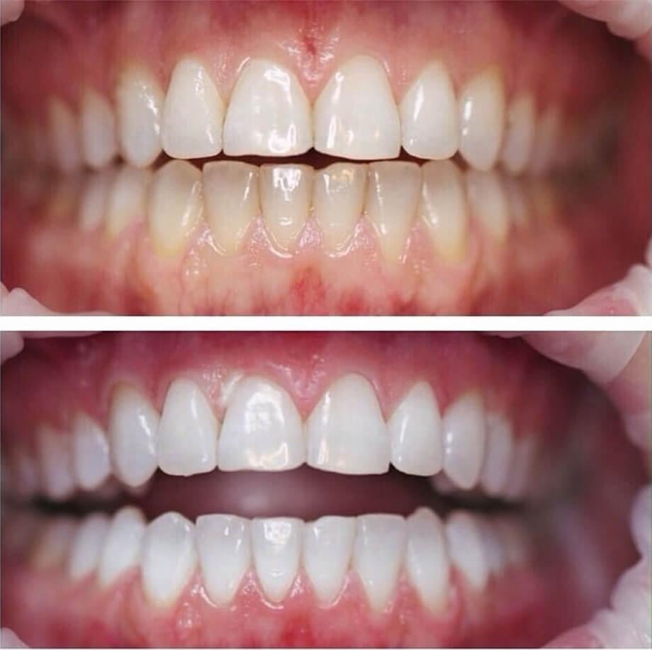 Отбеливание зубов Amazing White mobile