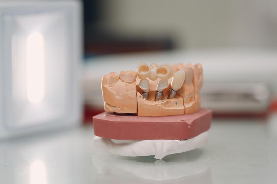 Мостовидные протезы зубов