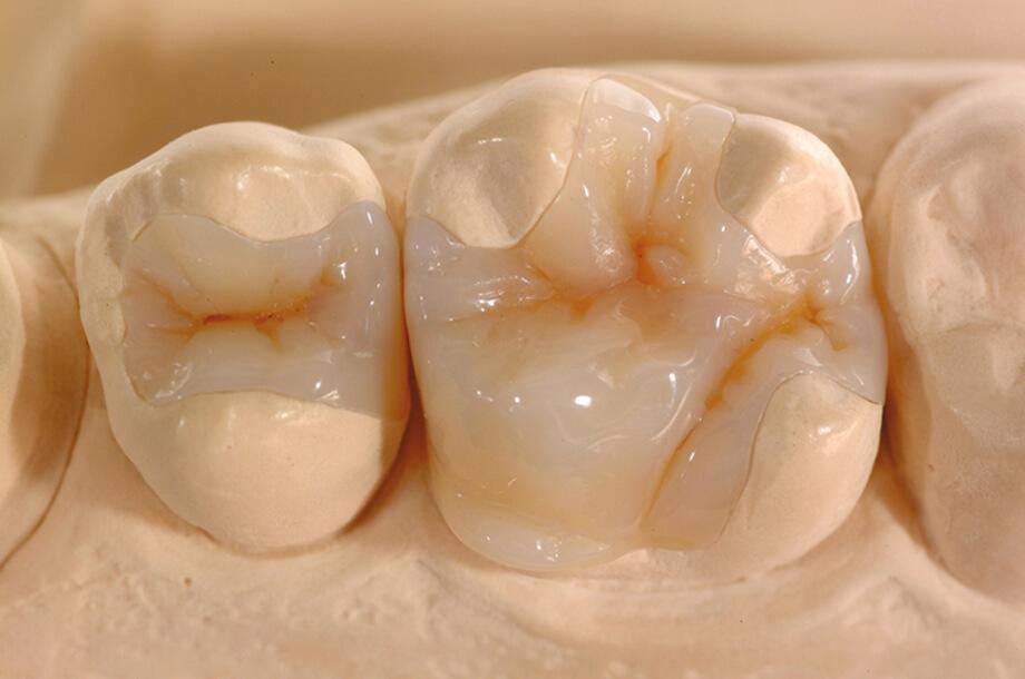 Реставрация зубов керамическими вкладками mobile