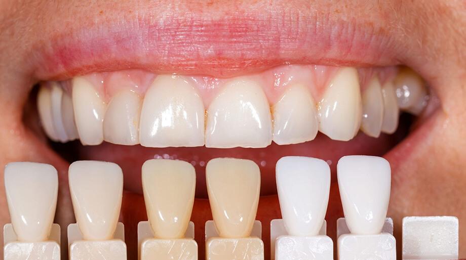 Реставрация зубов mobile