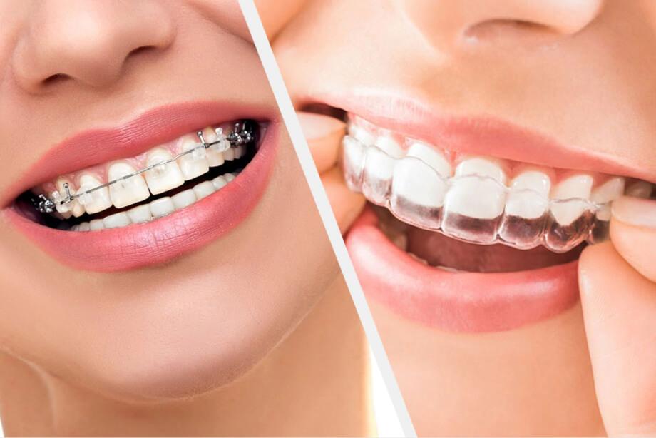 Исправление прикуса. Ортодонтия. mobile